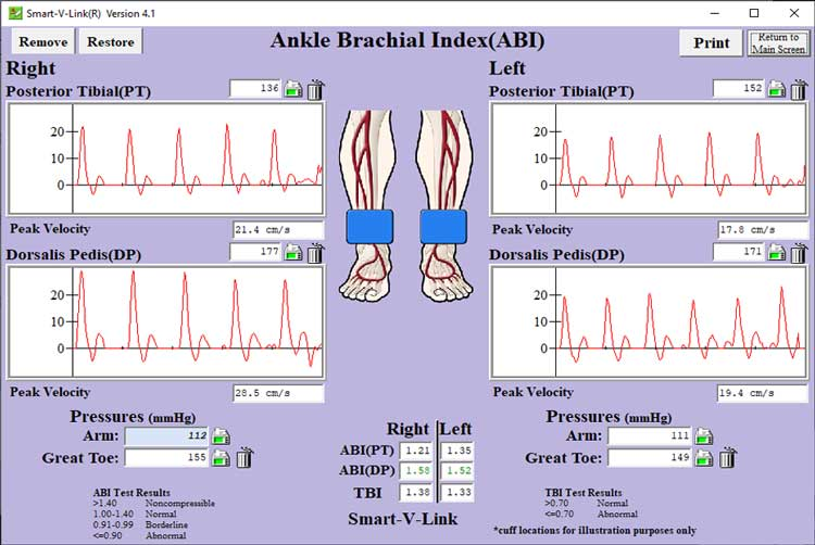 Ankle Brachial Index Screen