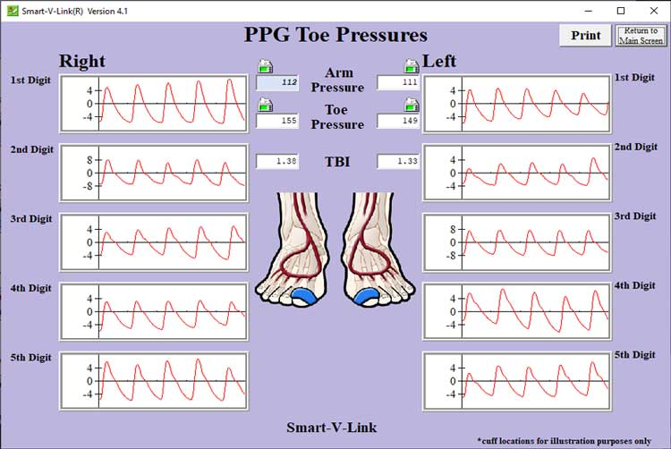 PPG Toe Pressures Screen