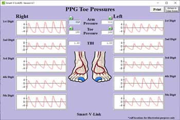 PPG Toe Pressure Screen