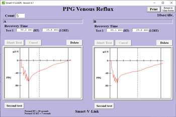 Venous Reflux Test Screen